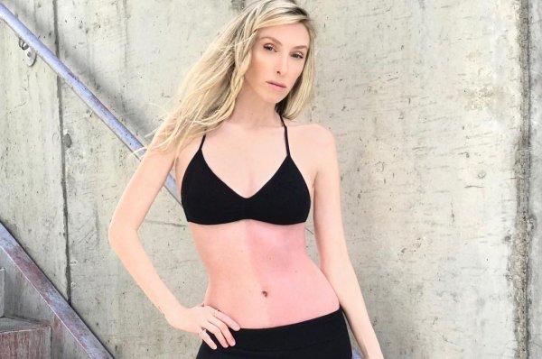 Скрывавшая уродливое родимое пятно американка стала моделью