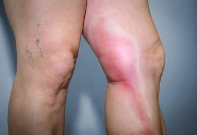 Медики перечислили характерные симптомы тромбофлебита
