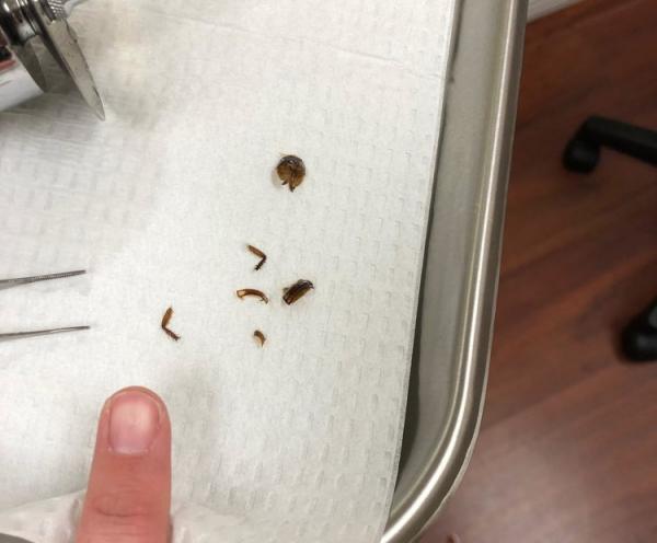 Американка 9 дней прожила с тараканом в ухе