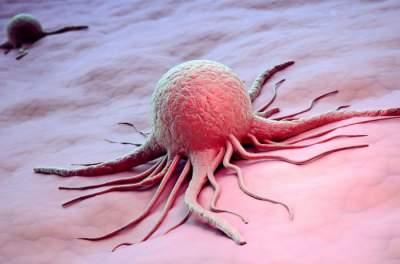Медики назвали первые признаки рака кожи