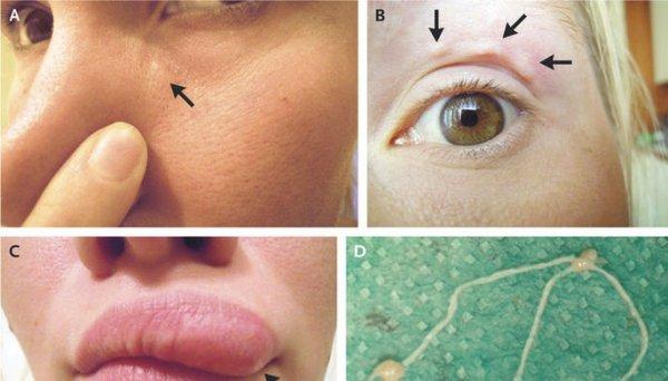 Джоли и не снилось: Ростовчанке раздуло губы из-за укуса комара