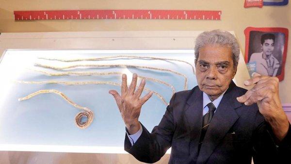 Индиец обрезал самые длинные ногти в мире после 66 лет отращивания