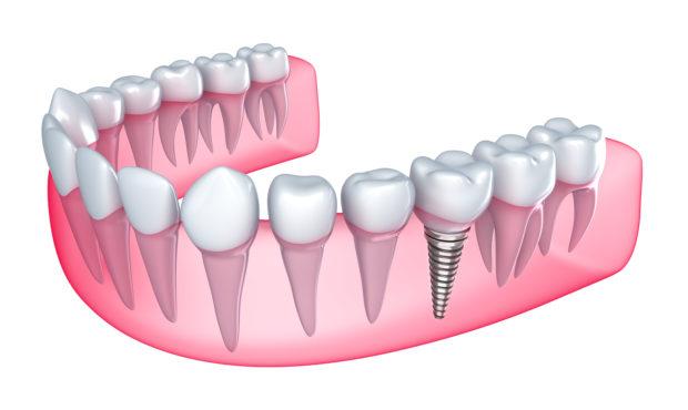 Все об имплантации зубов в Албании